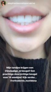 Orthodontie Hoofddorp